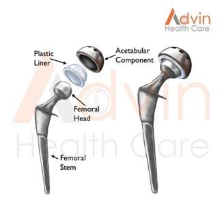 Hip Implants